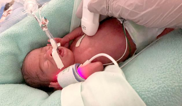 premature baby getting medical care